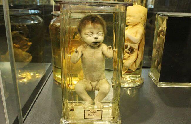 Museum Vrolik Dead Kid