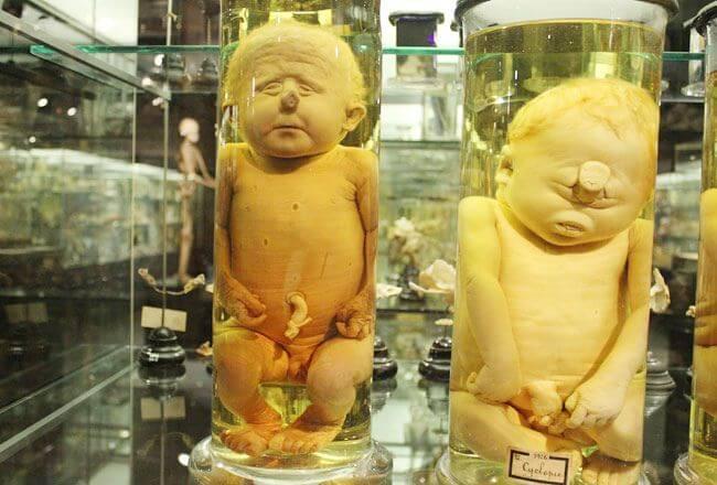 Museum Vrolik Kids in a Bottle