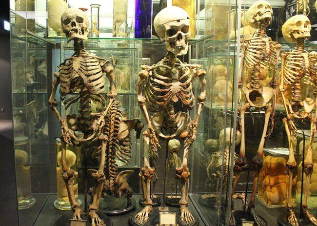 Skeletons in Museum Vrolik